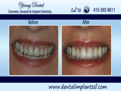 MedicineFilms.com - Dental Treatment |Cosmetic Dentistry | Dental Implants | Dentist San Franci